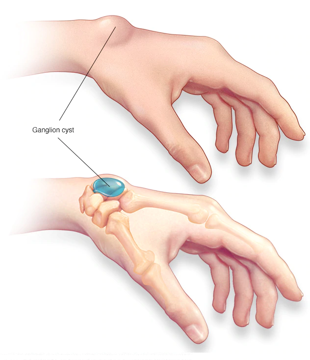 Ganglion cyst - Symptoms and causes - Mayo Clinic
